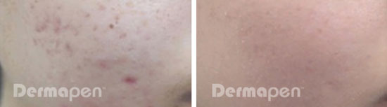 before after acne scar pores female